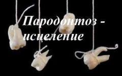 Пародонтоз-уникальная методика исцеления