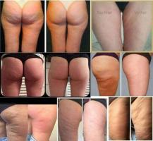 Коррекция тела и лица при помощи косметики