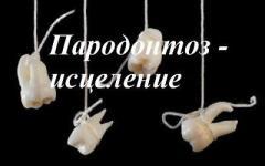 Пародонтоз, пародонтит - исцеление